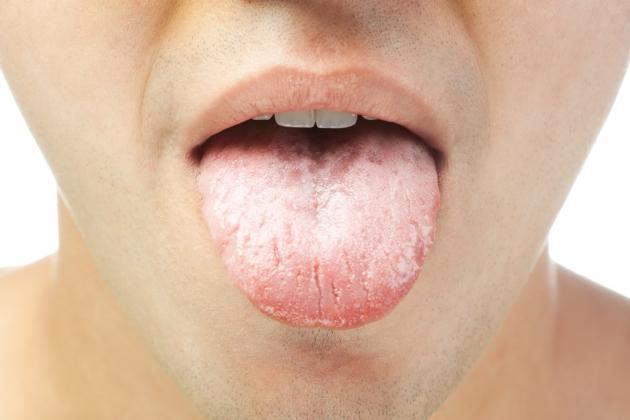 Que signifie la langue blanche ?